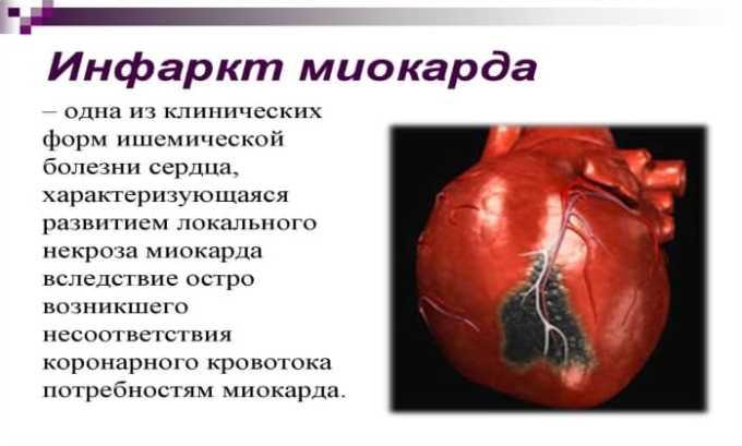 在心肌梗死时显示利多卡因