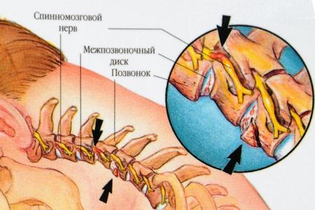 Kohdunkaulan selkäranka