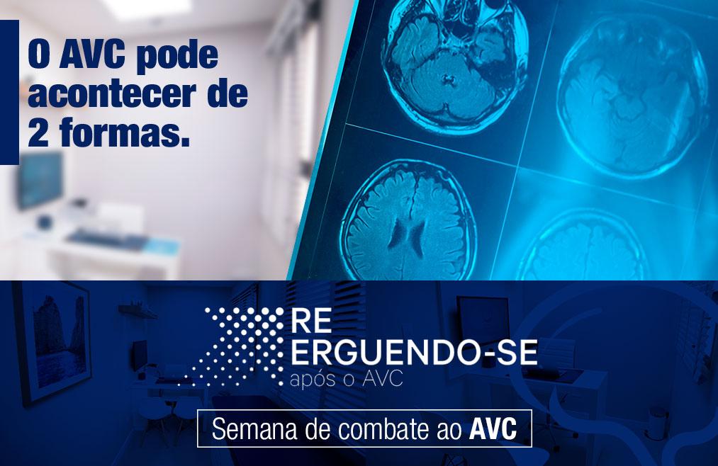 O Acidente Vascular Cerebral