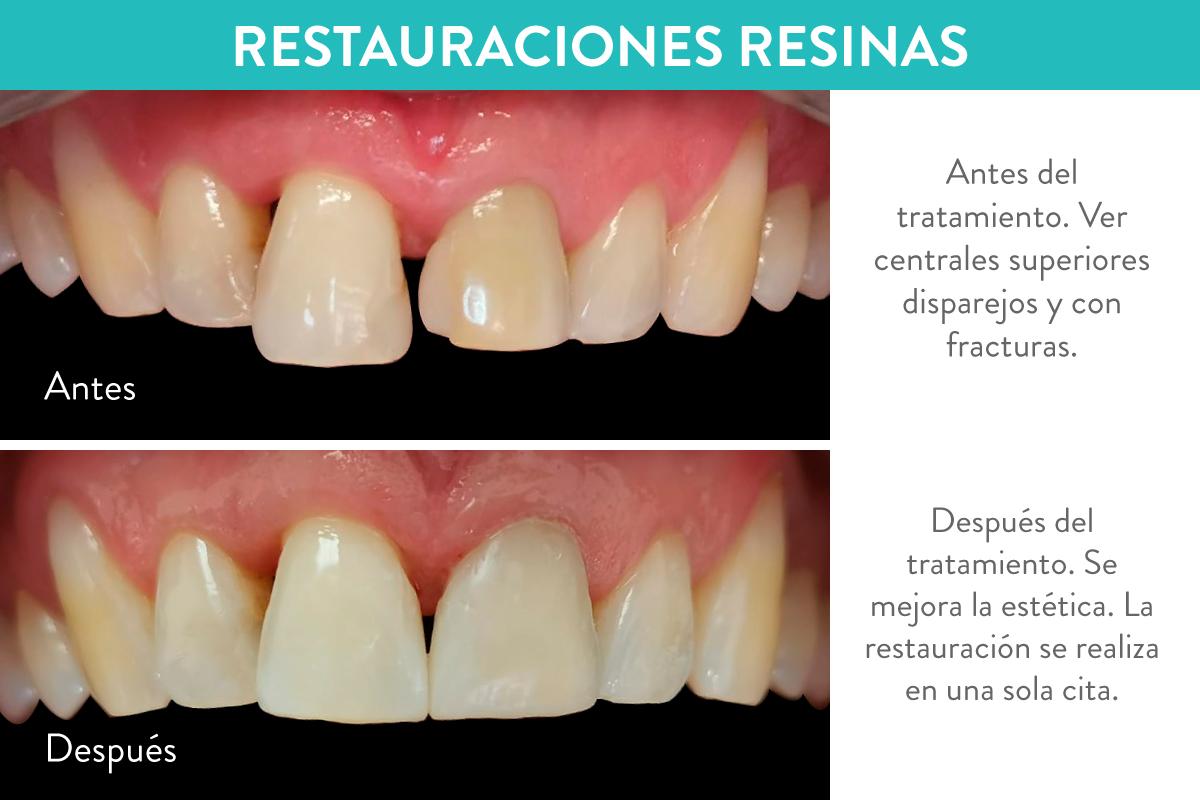 Restauraciones resinas