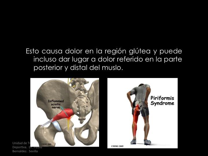 Síndrome Piramidal o Piriforme. Liberación Endoscópica.