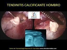 Tendinitis Calcificante-SPORTME