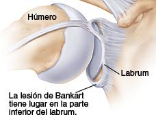 Luxación de hombro, Inestabilidad del hombro Sportme Sevilla