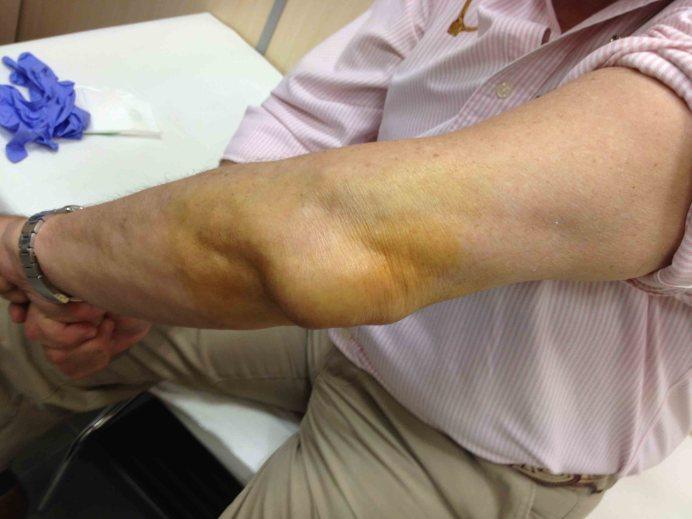 Bursitis de Codo.aspecto clinico