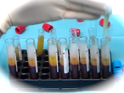 Platelet-Rich Plasma in the Management of Articular Cartilage Pathology