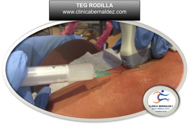 Expertos en Terapias Ecoguiadas y Cirugia Ecoasistida.Cirugia Ecoguiada.