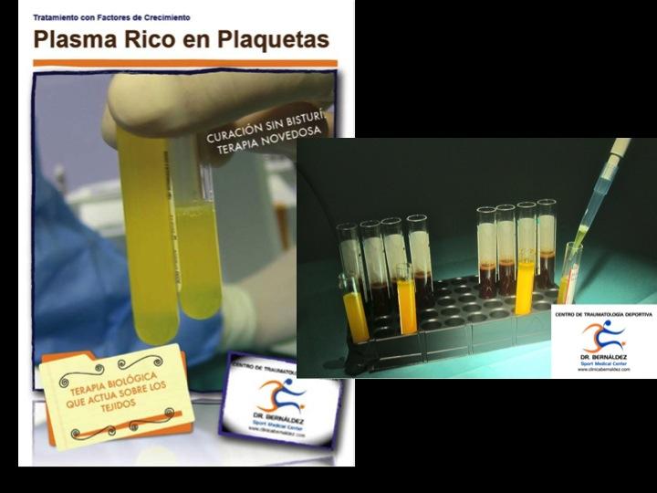 Plasma Rico Plaquetas Artrosis www.clinicabernaldez.com