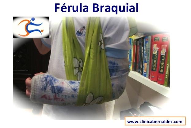 FERULAS EN EL NIí'O DR