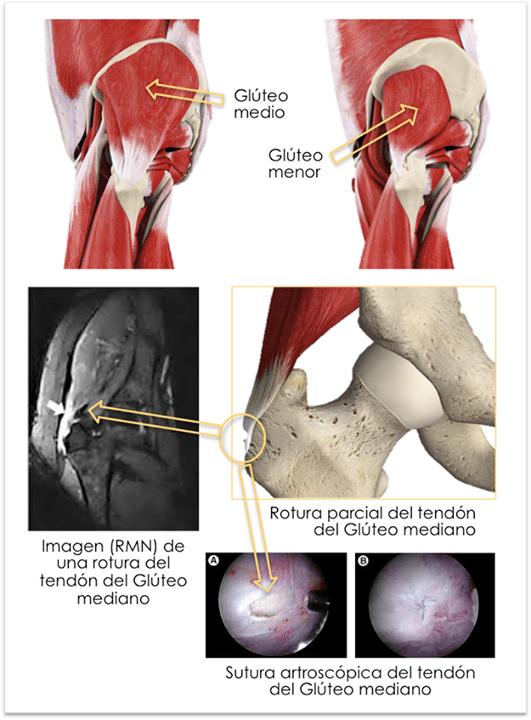 Tendinitis gluteos. Rotura de los tendones gluteos medio y menor