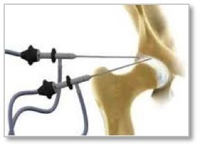 artroscopia cadera SPORTME
