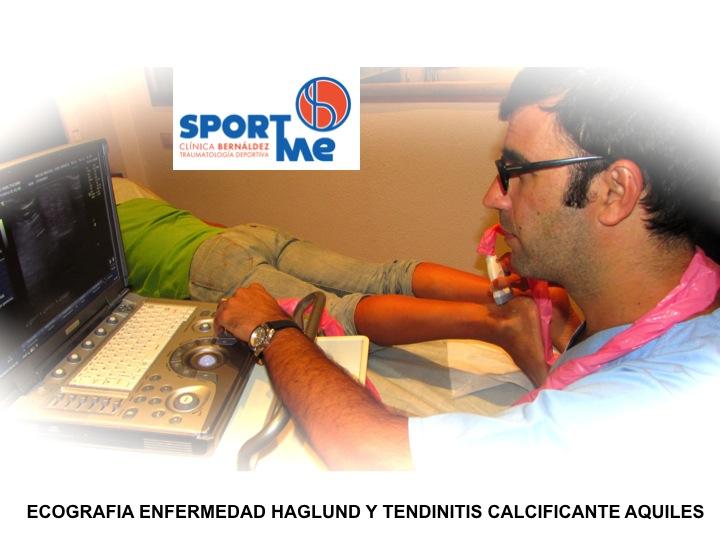 Enfermedad Hadlung Ecografia Sportme Sevilla