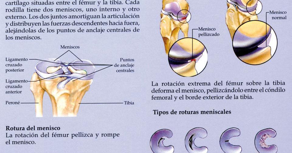 Lesión de Meniscos.Expertos en Rotura meniscal.Artroscopia de rodilla