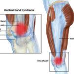 Rodilla del corredor o Sindrome Cintilla Iliotibial-SPORTME