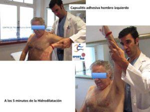 El Dr. Bernáldez practicando una Hidrodilatación