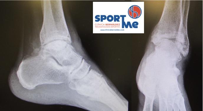 Pinzamiento anterior del tobillo o choque tibio-astragalino