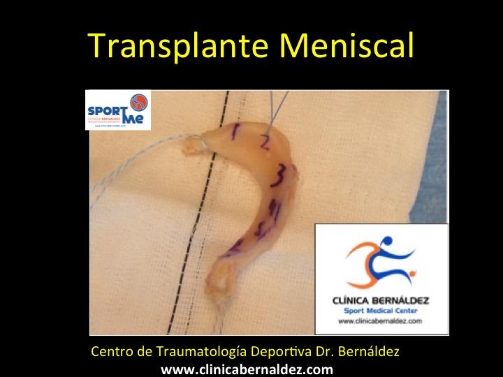 TRANSPLANTE MENISCAL