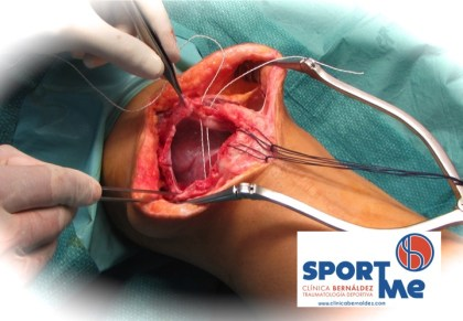 ROTURA TENDON CUADRICEPS-CUADRICIPITAL