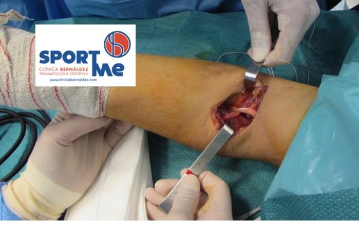 Reanclaje en la Intervención Quirérgica de la Rotura del Tendón Distal del Bíceps.