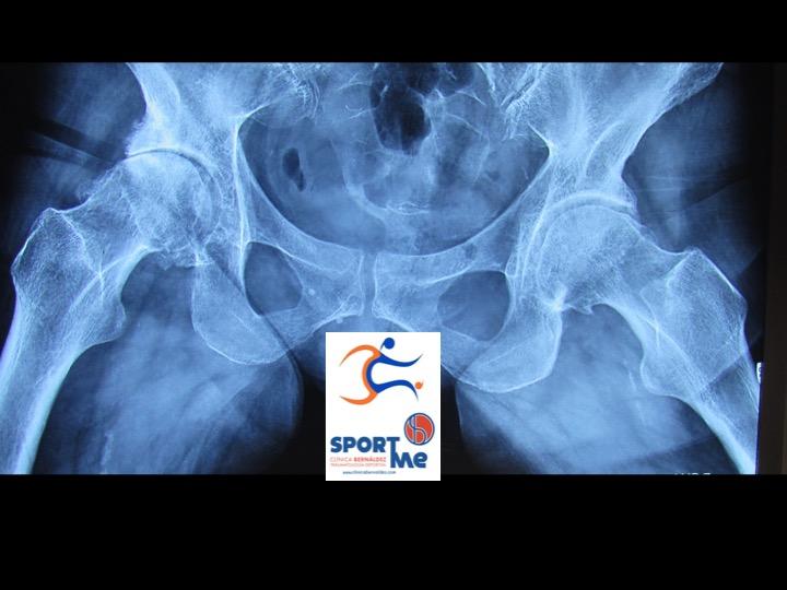 rx artrosis cadera sevilla SportMe