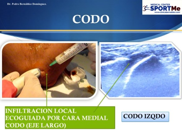 Las Tendinitis del Codo. Epicondilitis y Epitrocleitis
