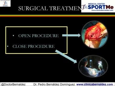 artrolisis abierta o cerrada