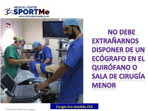 la-cirugia-eco-asistida-cea-10