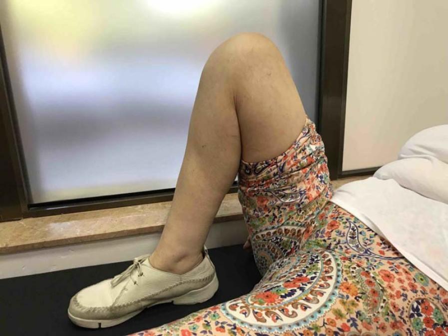 Genu valgo o rodillas en X. Expertos en cirugia de rodilla
