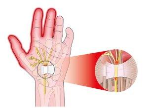 Síndrome del Túnel Carpiano. Dedos acorchados