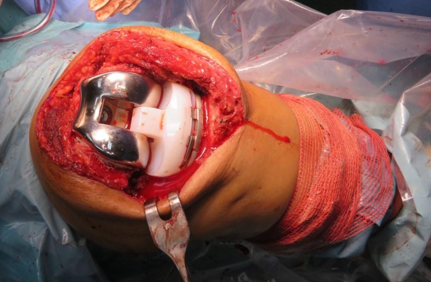 Revisión de Protesis Total de Rodilla o de Cadera. Rescate de Protesis