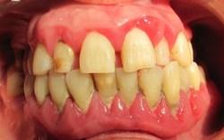 Tratamiento de la periodontitis en Clínica Dental Basi