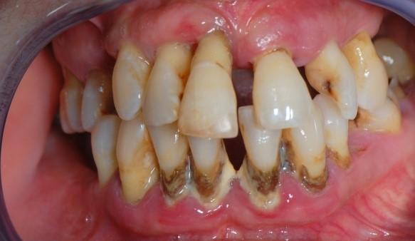 Periodontitis tratamiento