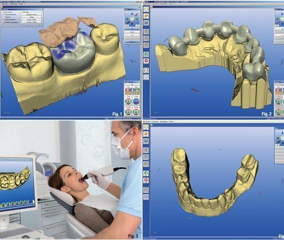 Prótesis dentales – CADCAM