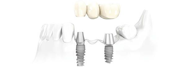 implante-precio-dental