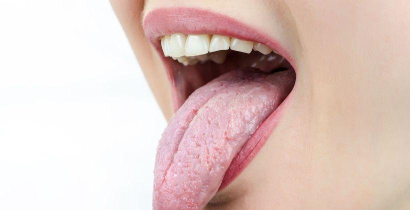 Causas y remedios contra la boca seca