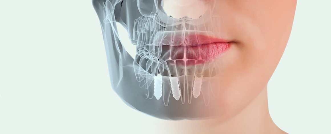 implantes-dentales-valencia1
