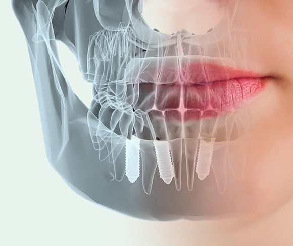 69 Preguntas sobre los Implantes Dentales