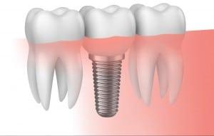 implantes-dentales-sevilla-e1461258426239