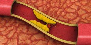 Toda la información referente al colesterol.