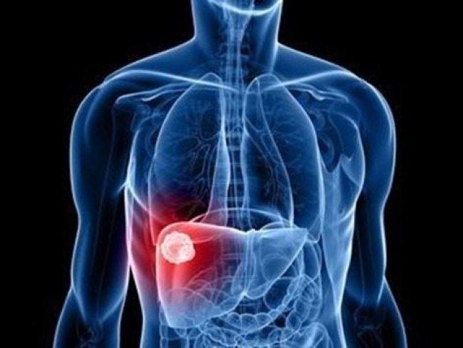Un estudio del IRB Barcelona y el IDIBAPS señala un probable tratamiento para evitar la formación de los numerosos vasos sanguíneos anómalos causantes de hemorragias digestivas, principal complicación en esta enfermedad.