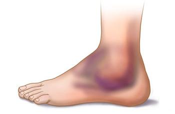 tratamento entorse tornozelo