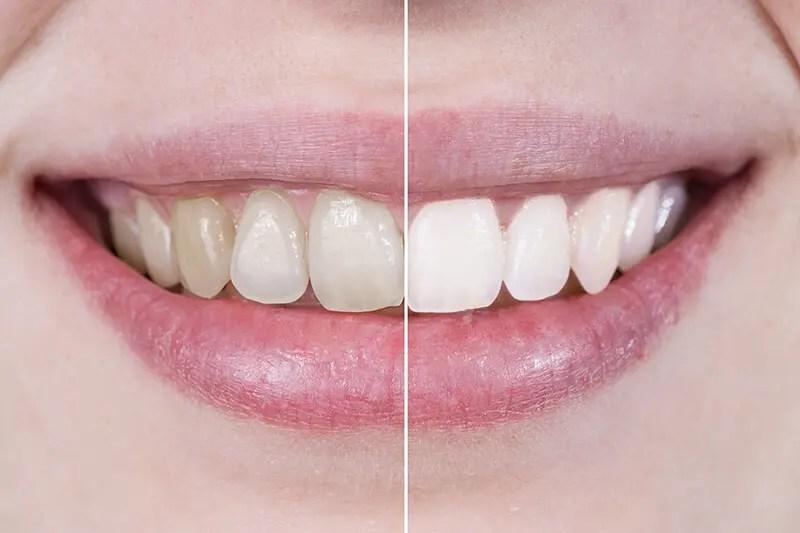 luce una sonrisa brillante gracias blanqueamiento cont - Cómo tener una sonrisa brillante | Salud y Belleza