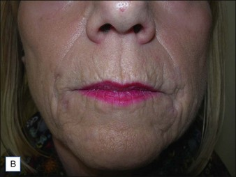Complications of permanent fillers | Clinical Gate