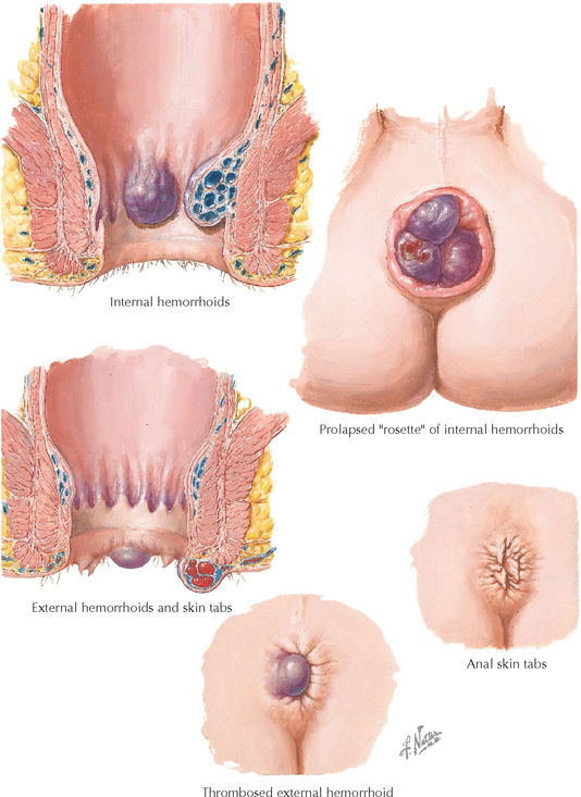 External Hemorrhoids Treatment and It's Causes and Symptoms ...