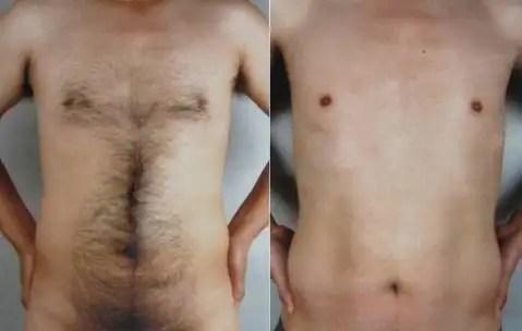 Depilacion - laser masculina Medellin