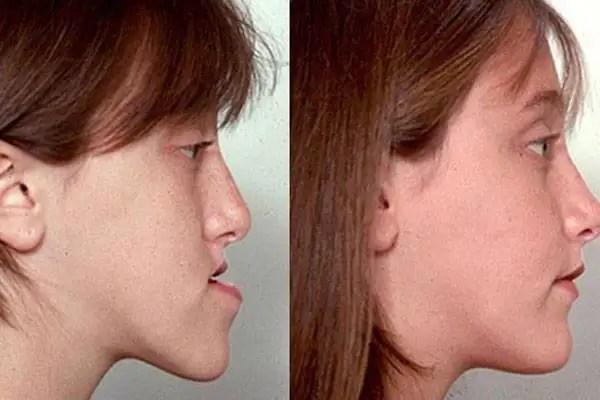 Cirugía mandíbula antes después