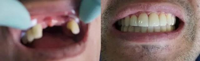 Puente-dental zirconio-después-Medellin