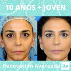 clínica anti envejecimiento facial Medellin