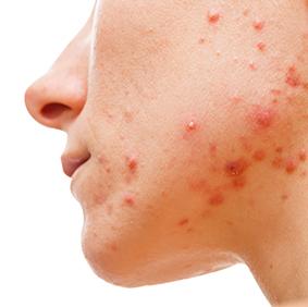 Facial Acne Clinical Trial