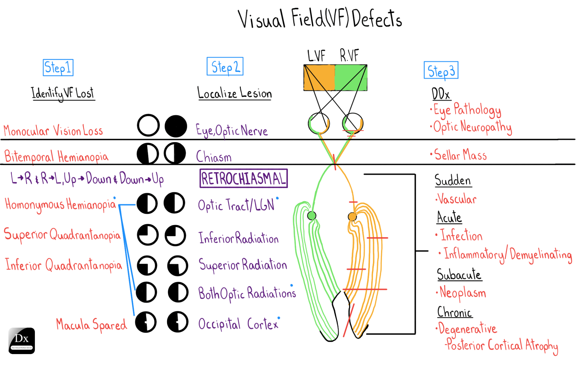 Visual Field Defects Final