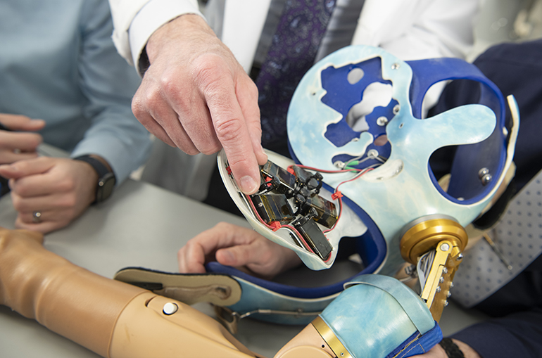 Cleveland Clinic's New Prosthetic Arm with Advanced Functionality